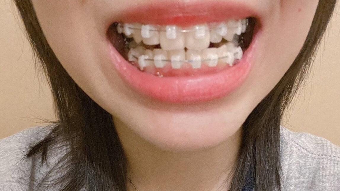 歯列矯正を3ヶ月ちょいやった結果がすごすぎる件...