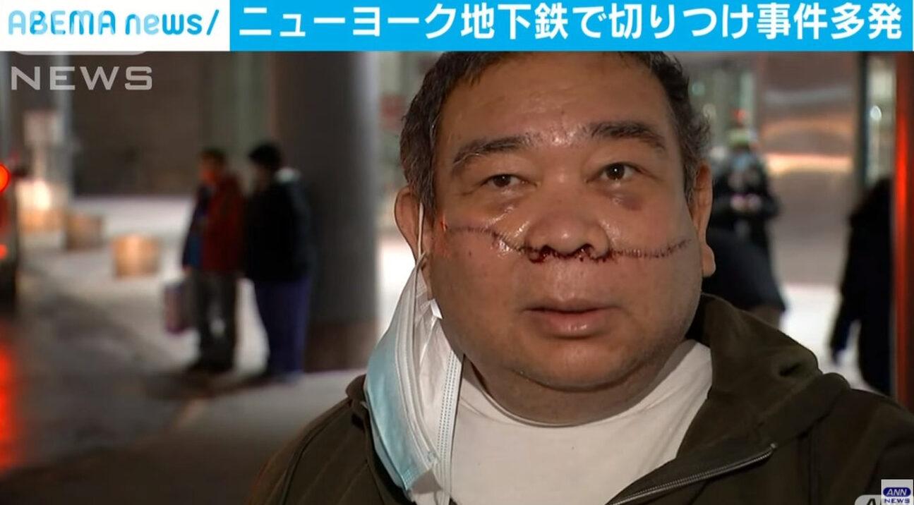 【悲報】黒人さん、アジア人を地下鉄で切りつけけてしまう