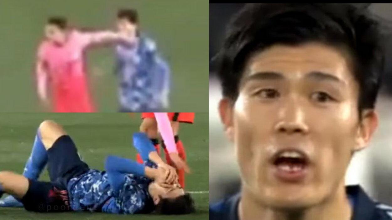 【速報】韓.国代表、負けた腹いせに肘打ちし冨安の歯が欠ける