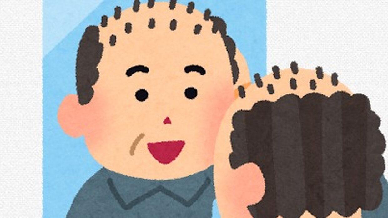 【画像】ハゲ治療して5ヶ月、髪が増える