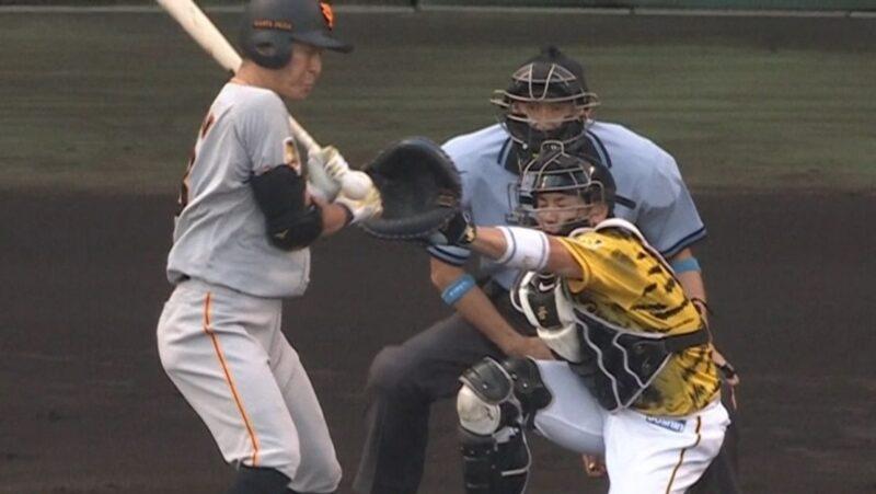 【悲報】巨人 梶谷隆幸、右第3中手骨骨幹部骨折
